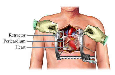This young researcher is revolutionising artificial heart implants doctors have to open the sternum put the heart on bypass and suture the device to the ventricle of the heart with every minute the heart is on bypass ccuart Choice Image